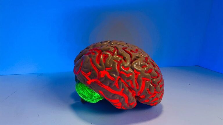 neuroplasticity brain